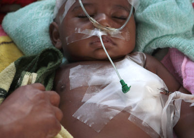 Child on Surgical Ward