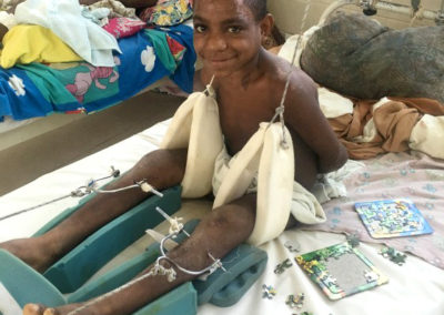 Boy with Fractured Skull and Legs